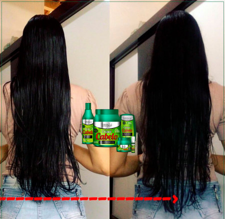 Forever Liss Kit Cresce Cabelo + Tônico (4 Itens)