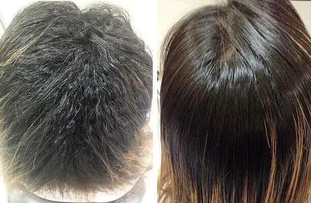 Resultado Antes e Depois Exo Hair