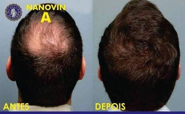 Nanovin Resultado